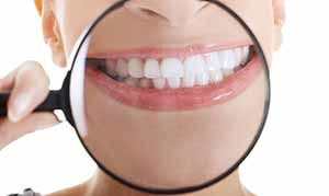 teeth whitening in etobicoke dentist