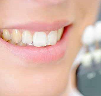 Why Are My Teeth Yellow Despite Good Dental Hygiene?