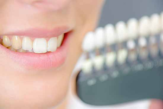 etobicoke denstist yellow teeth