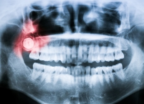Why Wisdom Teeth Often Need to Be Removed