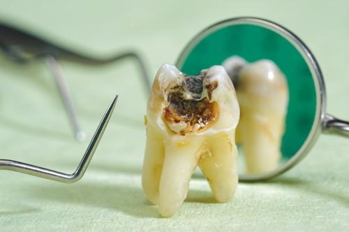 causes of cavity