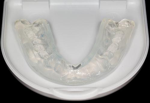 Mouthguard Tips