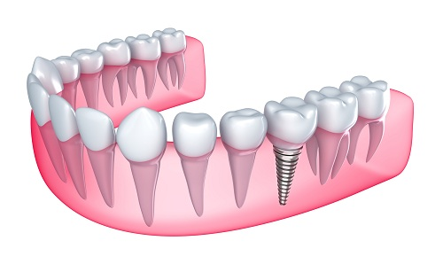 Give Yourself the Gift of Dental Implants