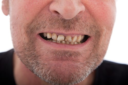 Stressful Habits That Harm Teeth