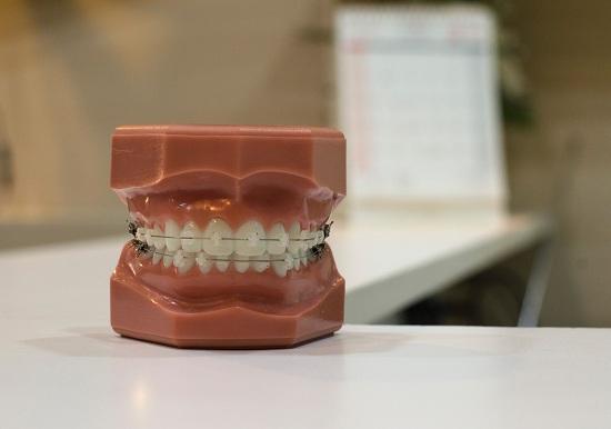 braces services