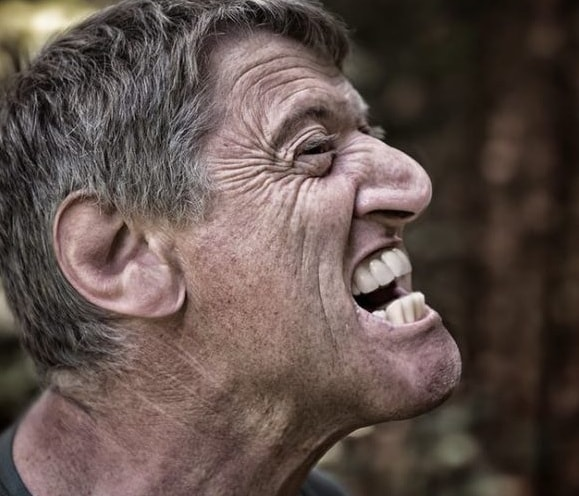 How to Manage Bruxism (Teeth Grinding)