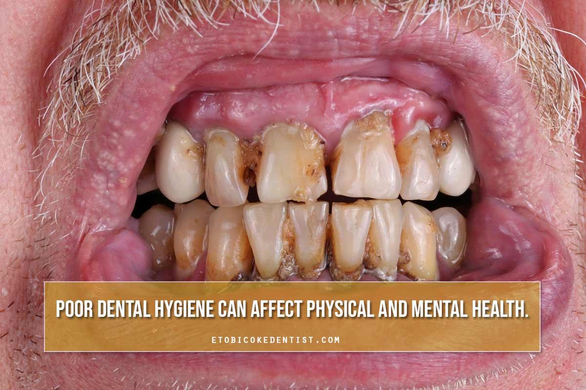 poor dental hygeine