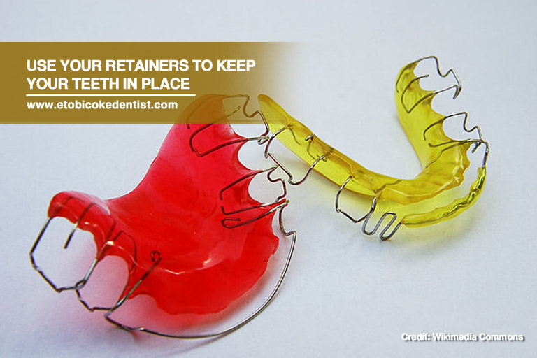 use your retainers
