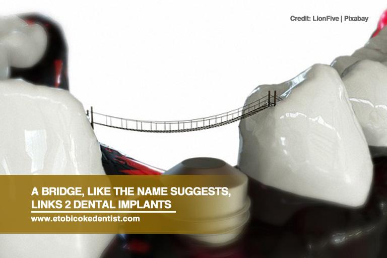 A bridge, like the name suggests, links 2 dental implants