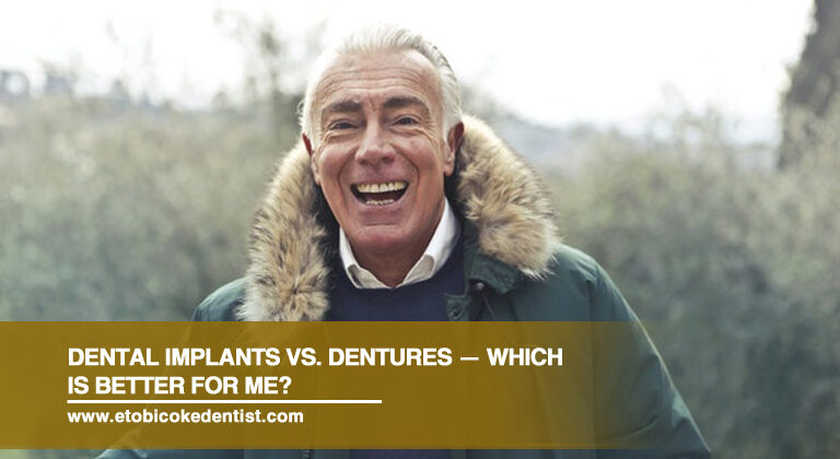 Dental Implants vs. Dentures — Which Is Better for Me?