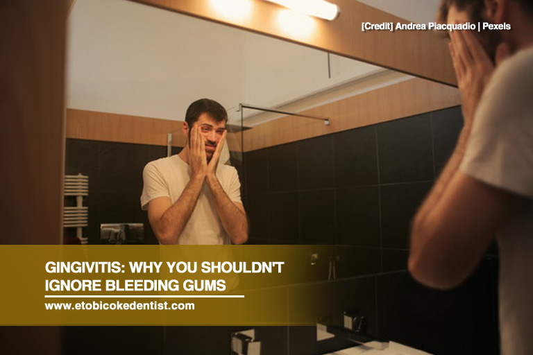 Gingivitis: Why You Shouldn't Ignore Bleeding Gums
