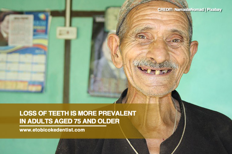 Loss of teeth is more prevalent in adults aged 75 and older