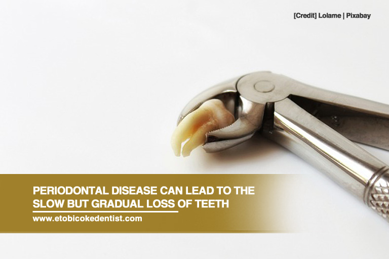 Periodontal disease can lead to the slow but gradual loss of teeth