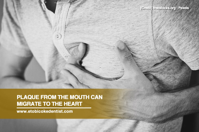 Plaque from the mouth can migrate to the heart