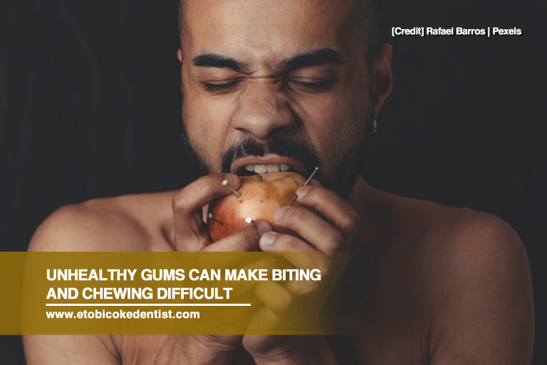 Unhealthy gums can make biting and chewing difficult